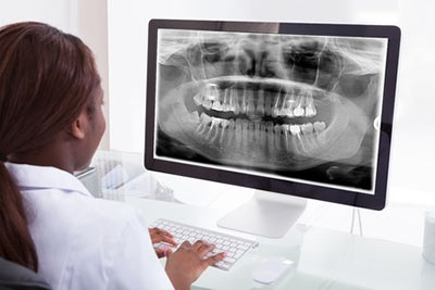 Dental Digital X-Ray, Pittsburgh, Greensburg